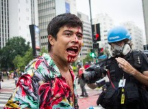 Manifestante ferido (fonte: facebook PSTU)
